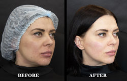Sodium hyaluronate l'acide hyaluronique pour Anti-Wrinkle