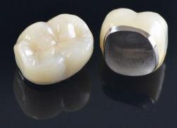 A los de metal fundido de porcelana coronas dentales y puente