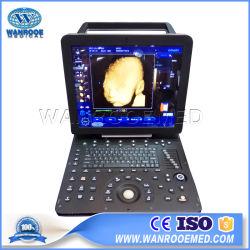 Usc300 portátil el equipo de Dispositivos Médicos Escáner portátil Doppler Color Ecógrafo