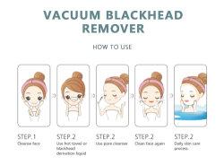 Prezzo di fabbrica Amazon Hot Blackhead Remover poro, pulizia naso Blackhead Remover vuoto, Black Head Remover
