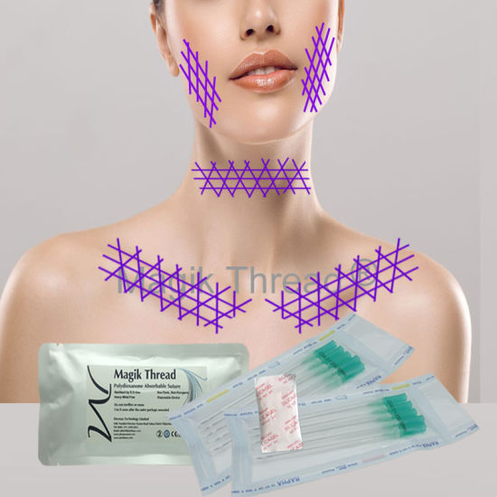 Cosmetic Face Pdo Thread Lifting for Deep Wrinkle