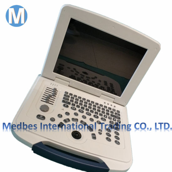 Portable Ultrasound Scanner Medical Instrument Diagnosis System pictures & photos