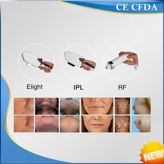 Best Effect Portable Multi-Function Hair Removal Skin Rejuvenation pictures & photos