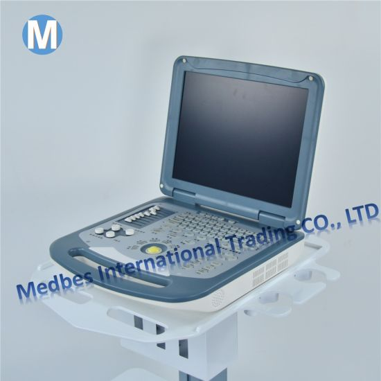 Medical Hospital Equipment Portable Color Doppler Ultrasound pictures & photos
