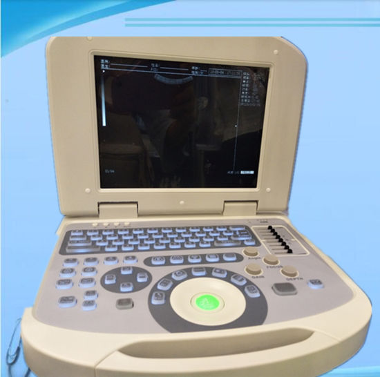Medical Device Digital Portable Ultrasound Machine for Ob&Gyn