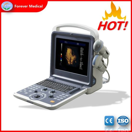 Medical Equipment Portable Color Doppler Ultrasound Machine