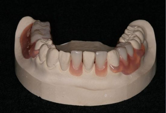 Partial Valplast Flexible Denture with Acrylic Tooth pictures & photos