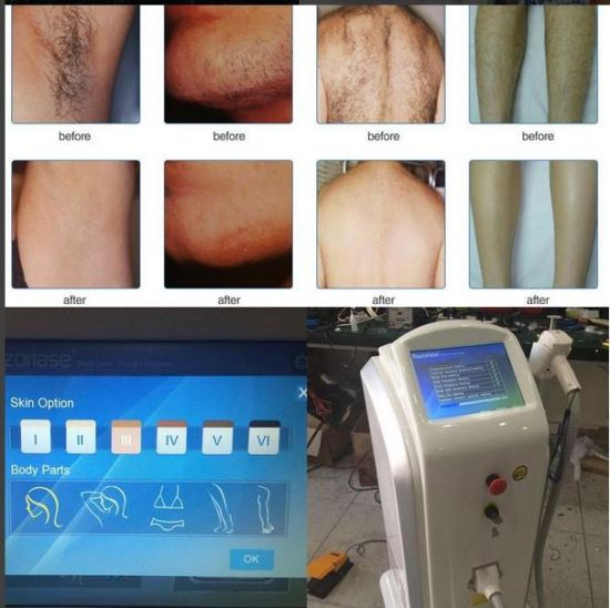 Ce/FDA/Tga Approved 808nm Diode Laser Alexandrite Hair Removal Machine pictures & photos