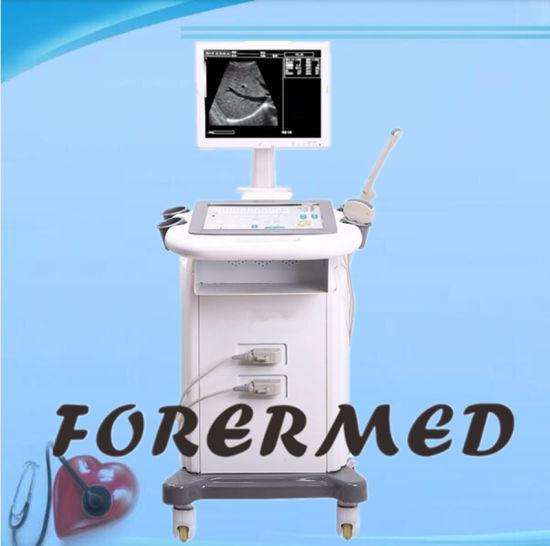 Medical Trolley Color Doppler Diagnostic System Digital Ultrasound