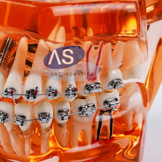 China as Manufacture Orthodontic Passive Self Ligating