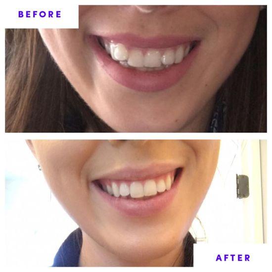 China Professional Dental Whitener Smile Teeth Bleaching System