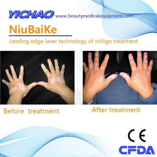 Good Quality Cheaper Professional UV Medical Beauty Psoriasis Treatment Instrument pictures & photos