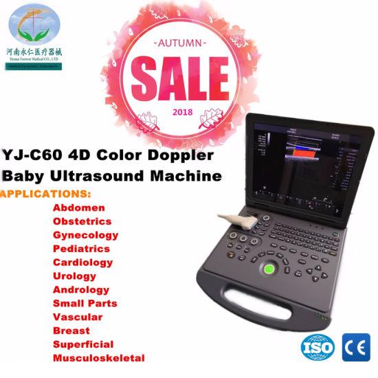 4D Portable Color Doppler Ultrasound Equipment for Ob/ Gyn