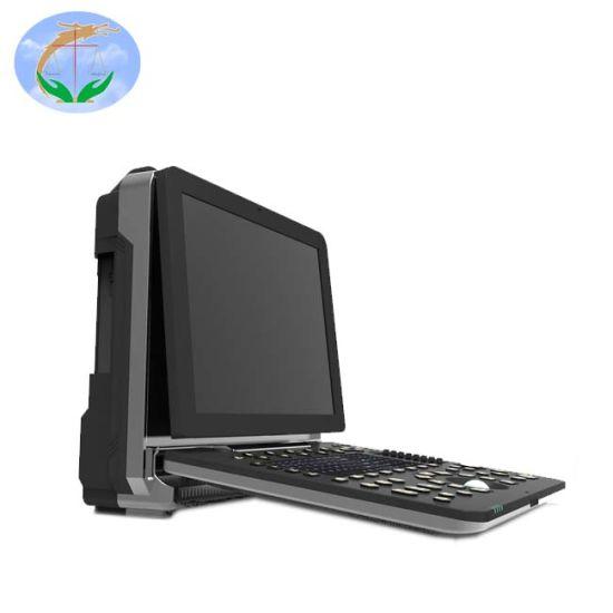 Yj-C90 Full Digital Ultrasound 4D Portable Color Doppler