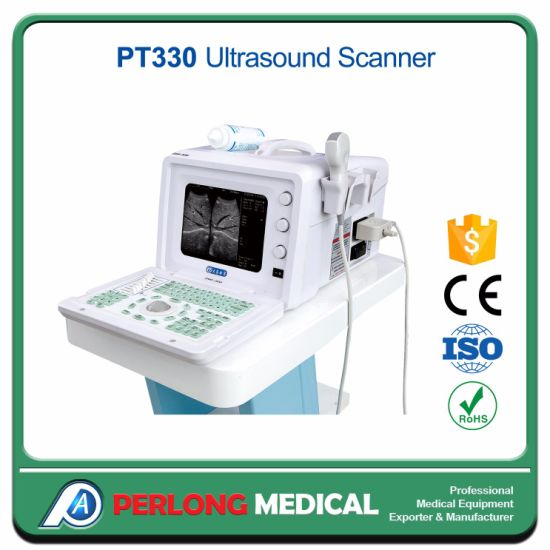 Factory Directly Sell Full-Digital Portable Ultrasound Scanner PT330 pictures & photos