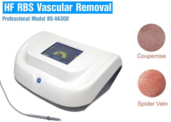 China Hf Vascular Skin Tag Removal System China Telangiectasia