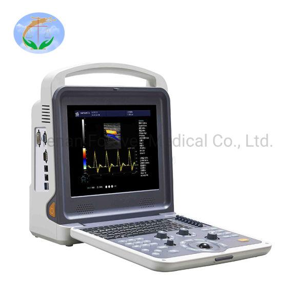 Hospital Equipment Portable 3D/4D Echo Color Doppler Ultrasound Scanner