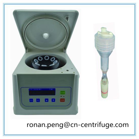 Prp Kit 10ml Centrifuge Small Prp Centrifuge