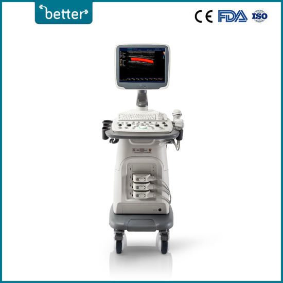 Full Digital Ultrasound 4D Color Doppler Sonoscape S11V Sonoscape Price