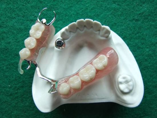 Magnet Precision Attachment From Shenzhen Minghao Dental Lab