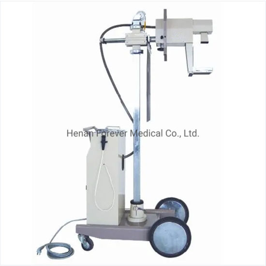 Intelligent Automatic Exposure Control High Frequency Digital Mammography X-ray System