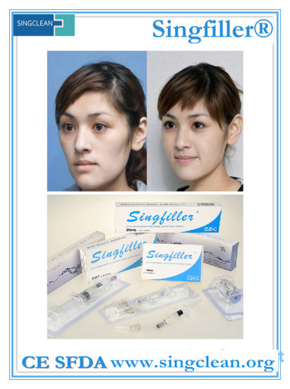 Ce Singfiller Hyaluronic Acid Dermal Filler for Cheek Nose and Lip pictures & photos