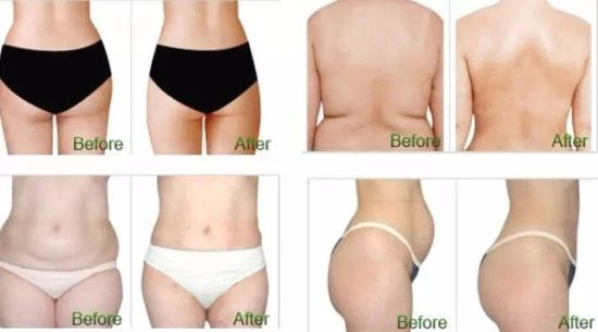 Effective Veshape 3 Weight Loss Body Slimming Machine pictures & photos