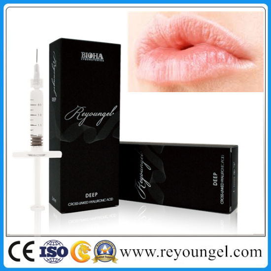 Reyoungel Injection Hyaluronic Acid Dermal Filler Anti-Aging Wrinkles pictures & photos