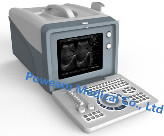 Ce Approved Hospital Medical Digital Portable Ultrasound Scanner (WHYC6) pictures & photos