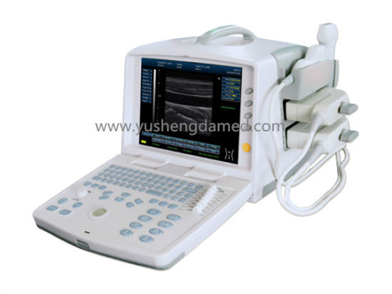 Digital Portable Ultrasound System (YSD1207) pictures & photos