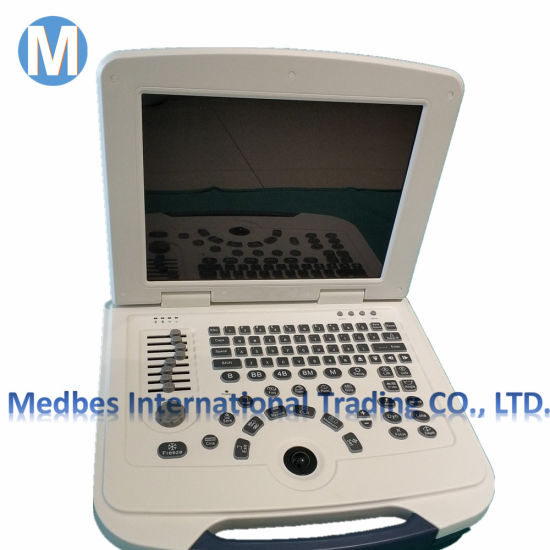 Medical Diagnosis Equipment Portable B Ultrasound Scanner M-B580