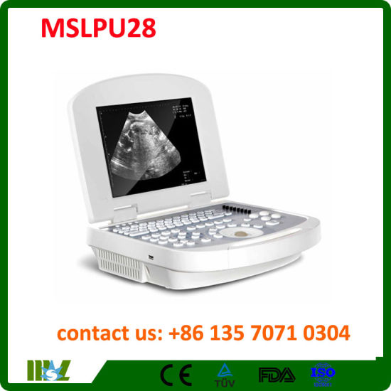 Medical Equipment High Technical Digital Portable Ultrasound Mslpu28 pictures & photos