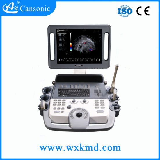 Low Price 4D Trolley Ultrasound Scanner