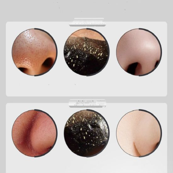 New Hot Selling Remove Whitehead Acne Nose Blackhead Skin Firming Mask  Blackhead Remover Mask Skin Makeup Cosmetics