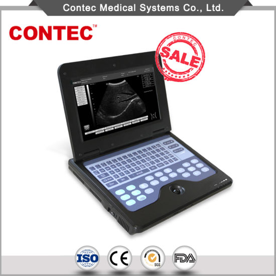 Hospital Equipment Portable Notebook B-Ultrasound pictures & photos