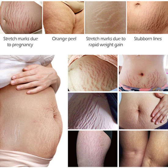 China Oem Remove Stretch Marks Pregnant Women Postpartum Repair