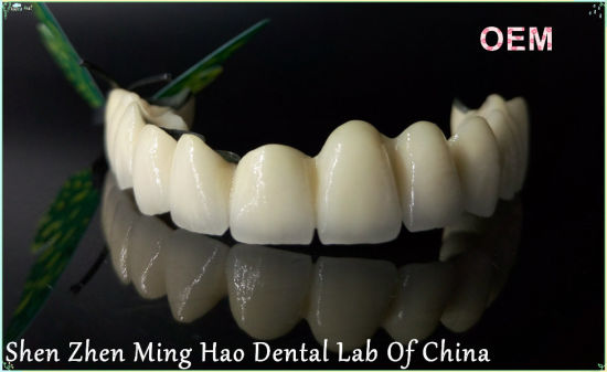 Porcelain Metal Crown Pfm Non-Precious From Shenzhen Minghao Dental Lab pictures & photos