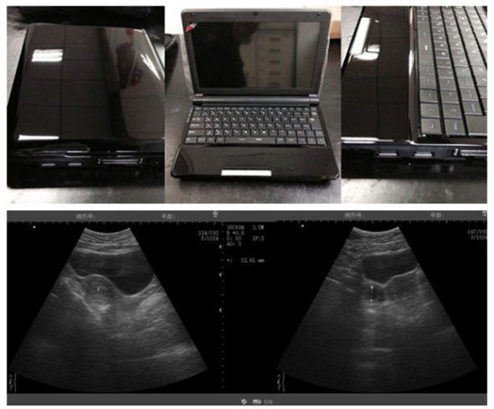 Laptop B Ultrasound Scanner with Battery pictures & photos
