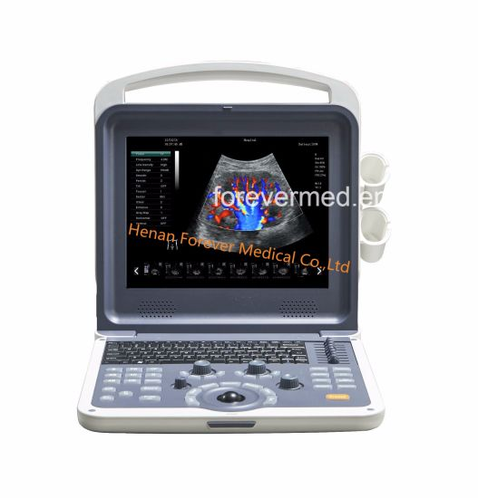 High Quilty Full-Digital Color Doppler Ultrasound Scanner (Yj-U60plus) pictures & photos