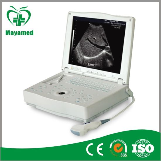 My-A004 Chinese Mamufacturer Portable Ultrasound Scanner pictures & photos