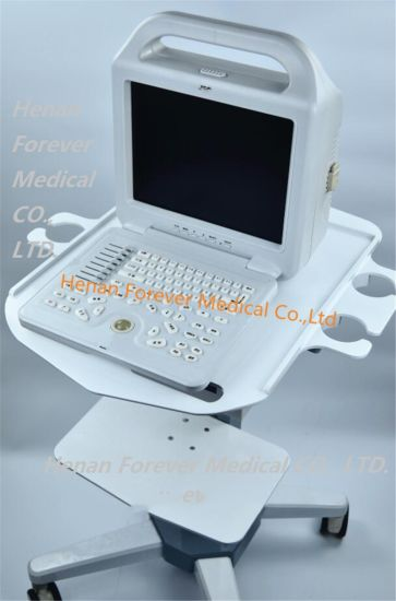 Ce*ISO Certified Medical Portable B Ultrasound Machine