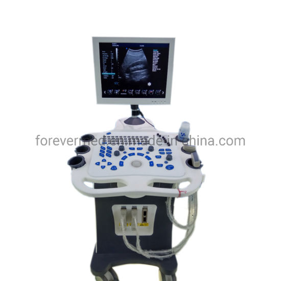 3D Trolley Color Ultrasound Scanner with Pw pictures & photos