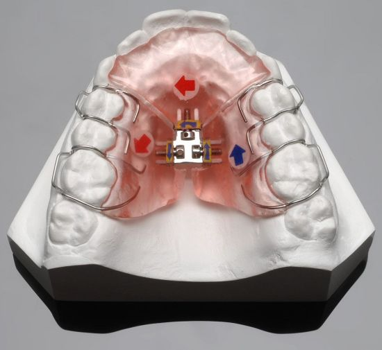3-Way Palatal Expander/Orthodontic Expansion Appliance
