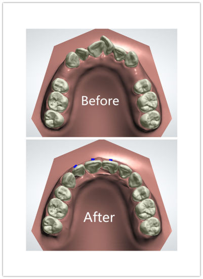Clear Aligner/Invisalign/Clear Braces/Invisible Braces Outsourcing to Midway Dental Lab