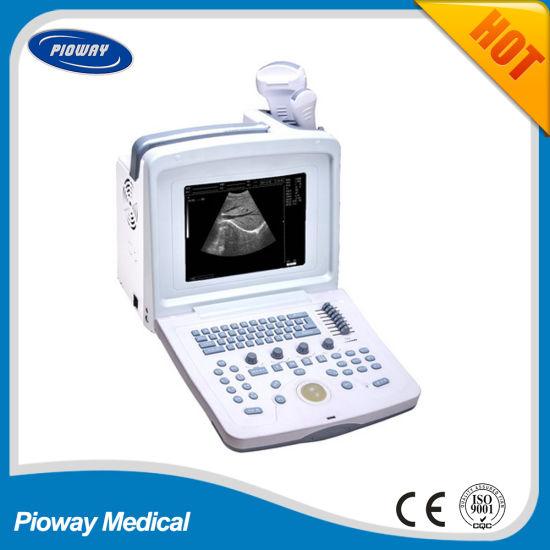 Portable Ultrasound Scanner / Ultrasound Machine (PW-9618)