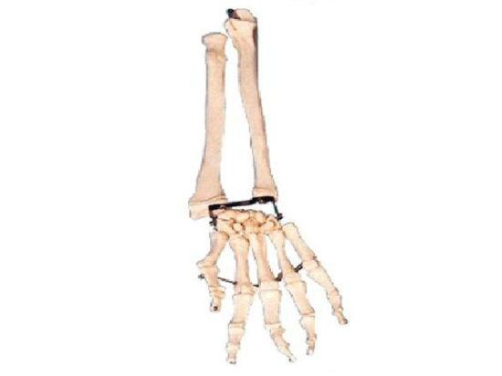 China Xy-11125 Palm Bone with Elbow-Bone and Radial Bone Model ...