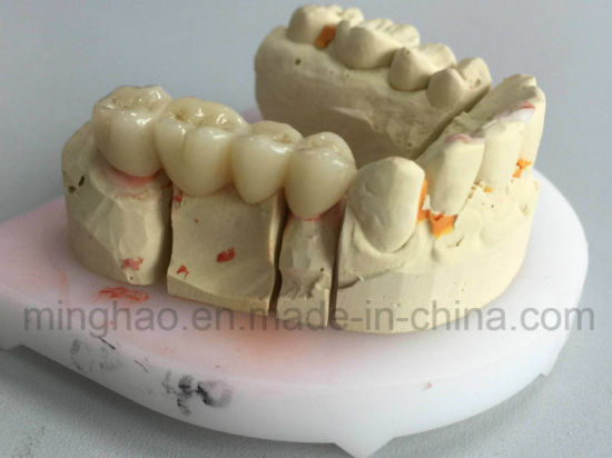 High Aesthetics Layered Zirconia Crown & Bridge From Shenzhen Minghao Dental Lab pictures & photos