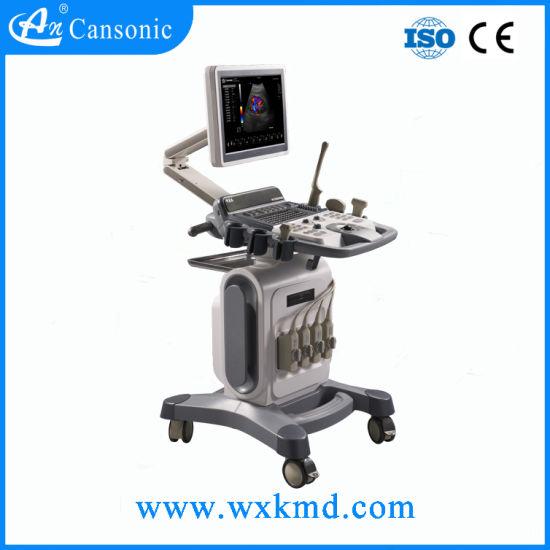 Advanced 4D Color Doppler Ultrasound Scanner (K18)