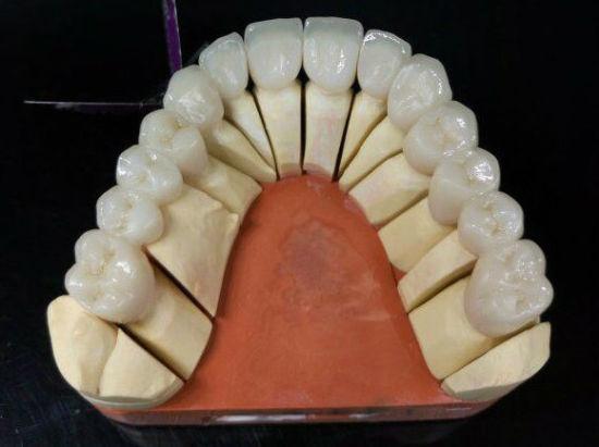 Zirconia Full Contour Bruxzir Solid Zirconia/Layered Zirconia Crowns & Bridges From Shenzhen Minghao Dental Lab