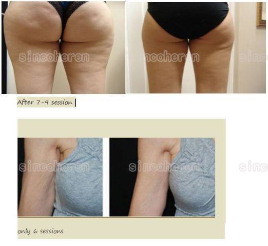 Lipo Contour and Curve Slimming Machine for Fat Reduction pictures & photos
